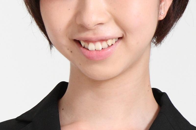 日本人の体質に合わせて漢方薬を処方