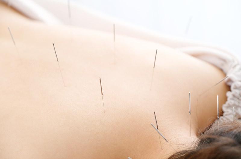 鍼灸治療の併用